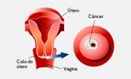 O meu testemunho sobre o cancro do colo do útero