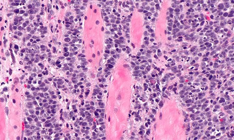 Tudo o que precisas saber sobre o Vírus do Papiloma Humano (HPV)